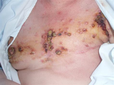 Breast lumps and lesions assessment and management in png 512x384